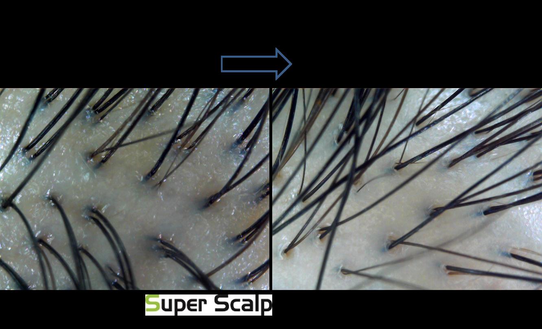 発毛の過程レポート