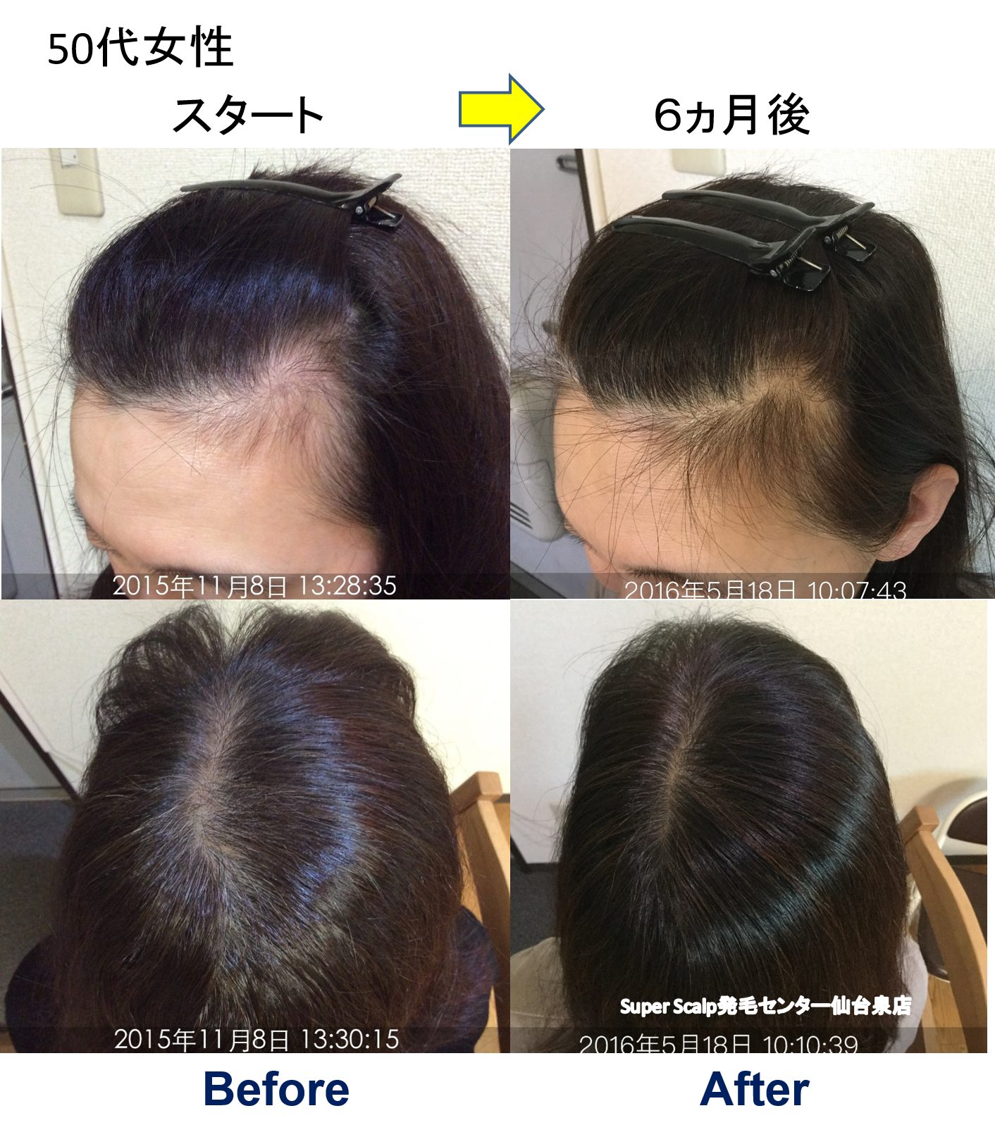 女性のお客様のM字おでこの薄毛が改善!そして維持。女性のM字 ...