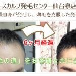 阿部の発毛経過 - コピー (2)