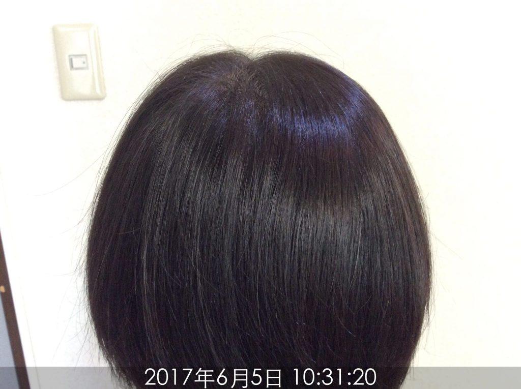 継続こそ大切!女性の薄毛改善経過レポート – 仙台で薄毛AGA ...