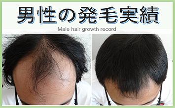 男性の薄毛治療・発毛実績