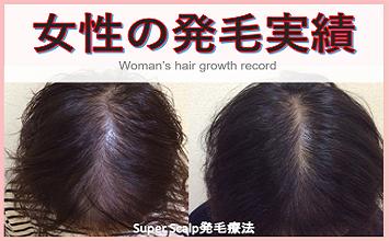 仙台で女性薄毛発毛実績